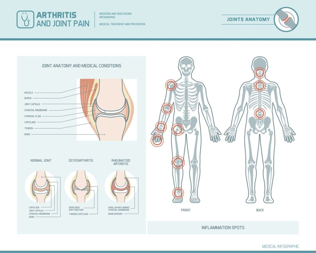 Different Types of Arthritis | Comprehensive Pain Management Center