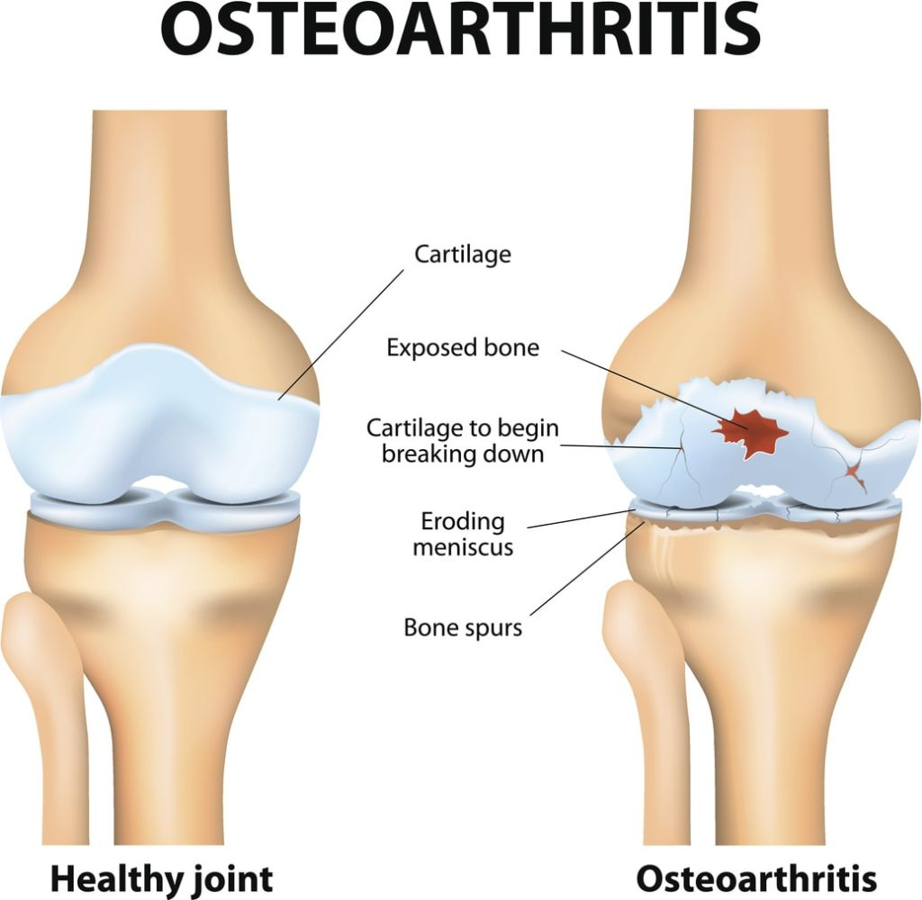 Osteoarthritis Pain | Comprehensive Pain Management Center
